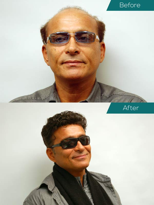 A before and after shot of a man who had hair replacement.
