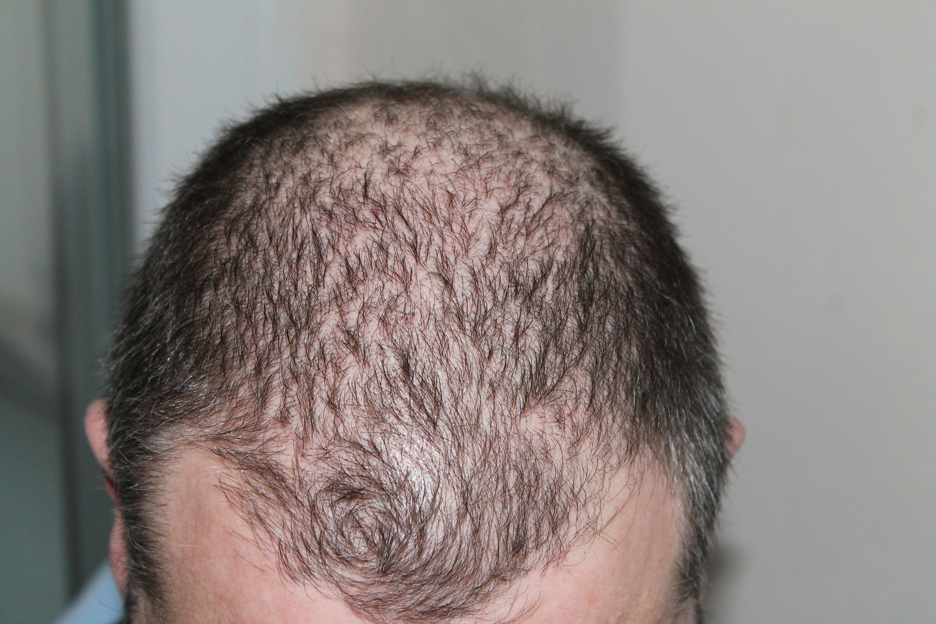 This is a man's thinning hairline.
